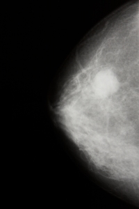 mammogram-breast